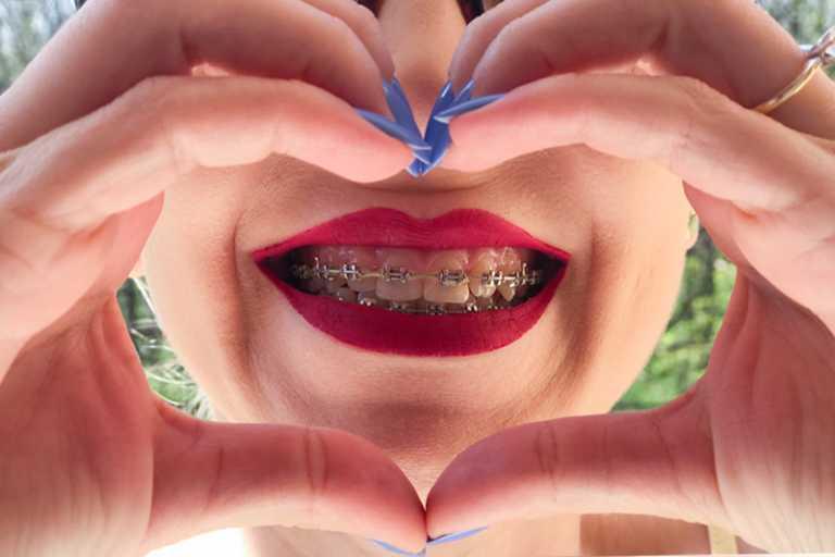 Igiena orala - obiceiuri nesanatoase