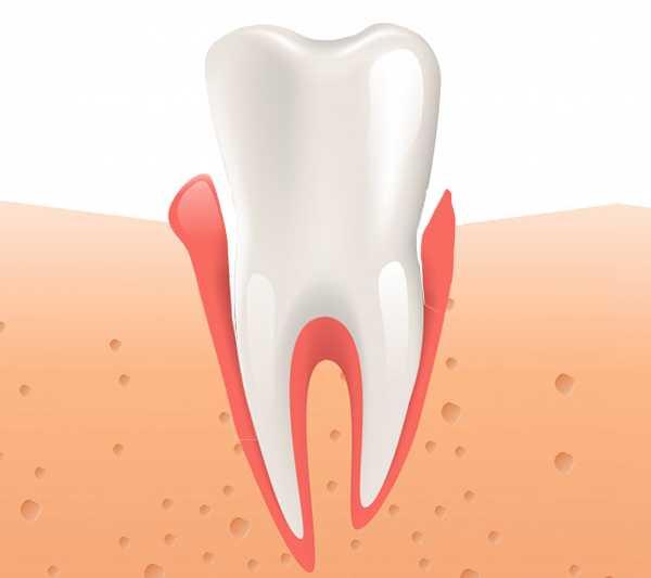 Cum arată o gingie retractată? Indicații, cauze și manifestări